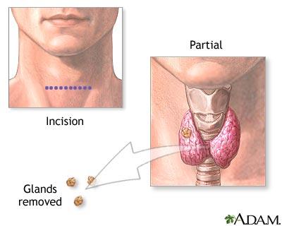 paratiroid-gld