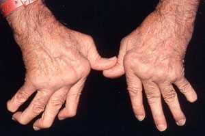 rharthritis